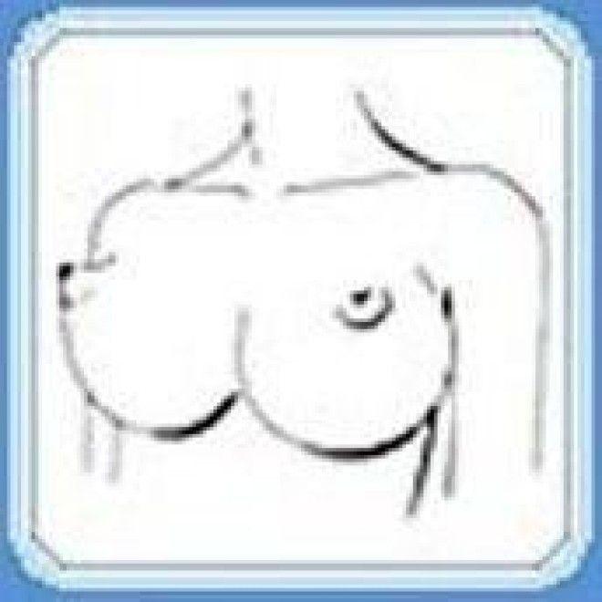 грудь лисий носик фото