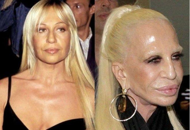7 знаменитостей которые собственноручно разрушили свою красоту