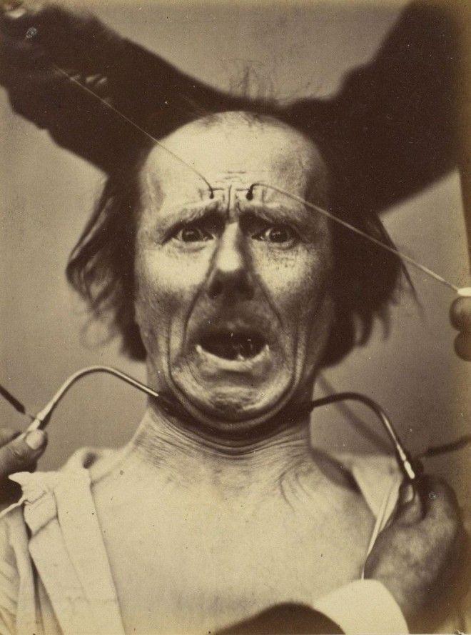Наука ты меня пугаешь как невропатолог Дюшен де Булонь изучал эмоции и мышцы лица в 1862 году лицо наука эмоции
