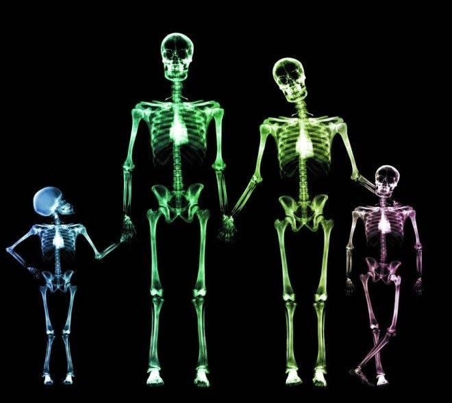 ошибки Рентген