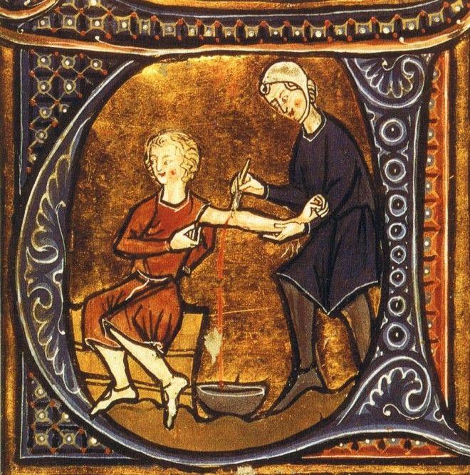 гомеопатия Кровопускание