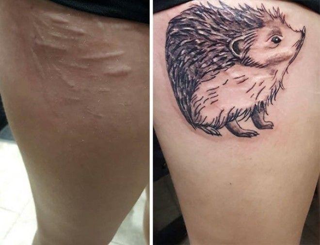 15 татуировок которые превратили шрамы в произведения искусства