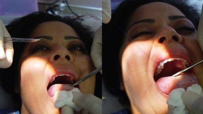 Вечная улыбка и другие вещи на которые способна современная хирургия