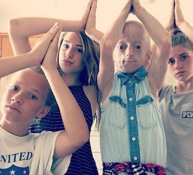 Кайли Халко девочкастарушка которая лечит артрит хипхопом