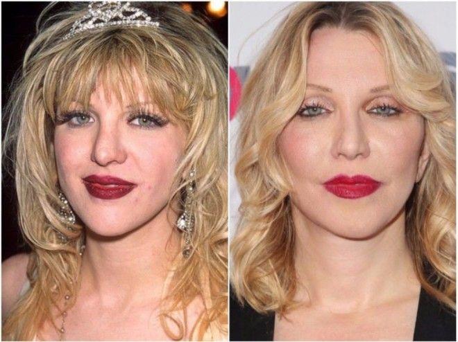 8 голливудских знаменитостей испортивших внешность ринопластикой