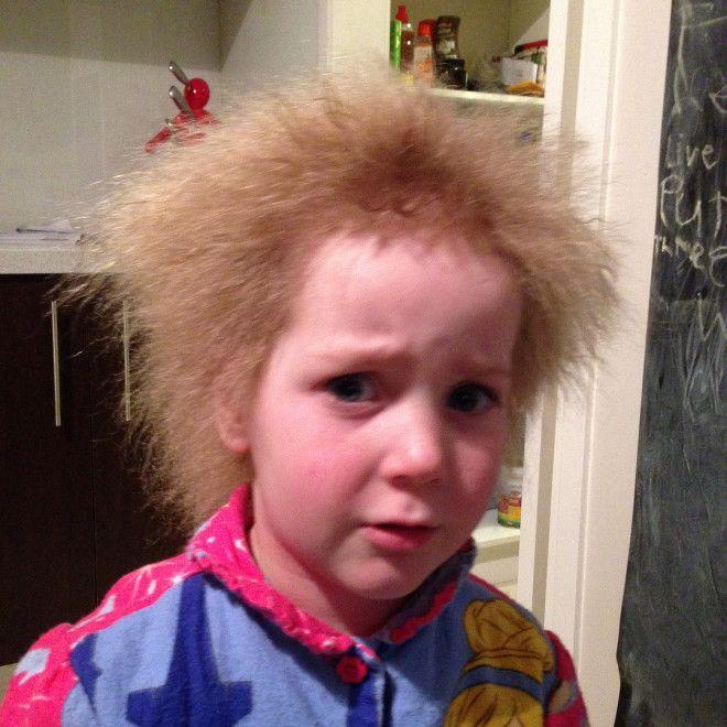 Изза генетической аномалии девочка не может расчесать свои волосы
