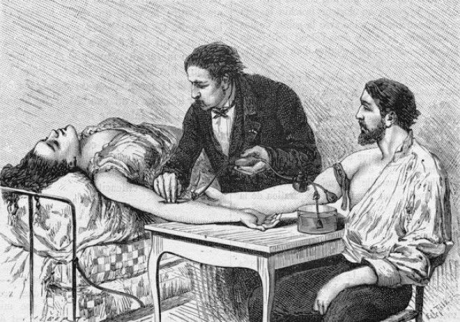 Картинки по запросу переливание крови