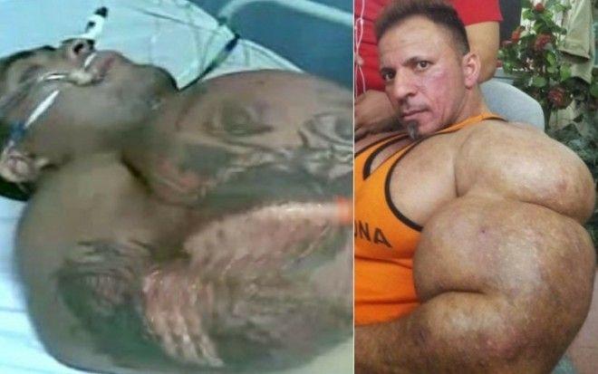 Атлеты с иголочки Что стероиды делают с человеческим телом