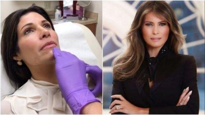 S42летняя женщина перенесла 9 операцийчтобы стать похожей на Меланью Трамп