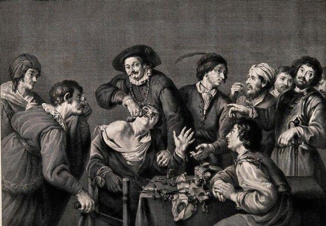 как лечили зубы в древности методы лечения зубов в средневековье