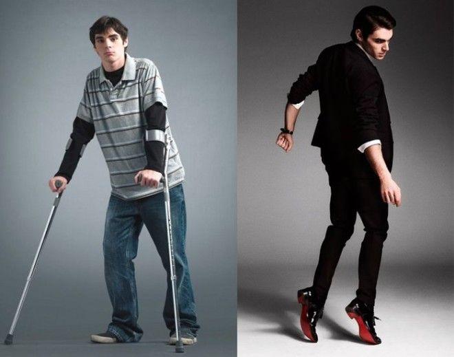 Американский актер который стал звездой несмотря на инвалидность Фото vovsetyazhkiecom