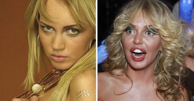 SB8 популярных звезд пластика губ которых заставляет ужаснуться