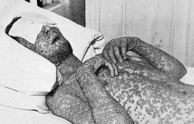 Человек инфицированный оспой