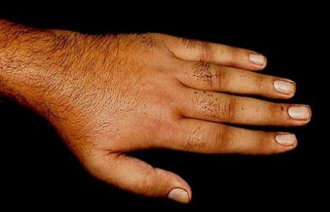 Месяц без душа могут развиться различные дерматиты