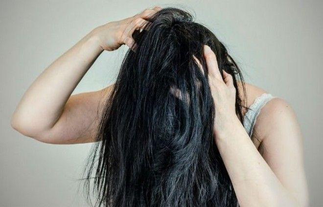 Месяц без душа появится зуд волосистой части головы