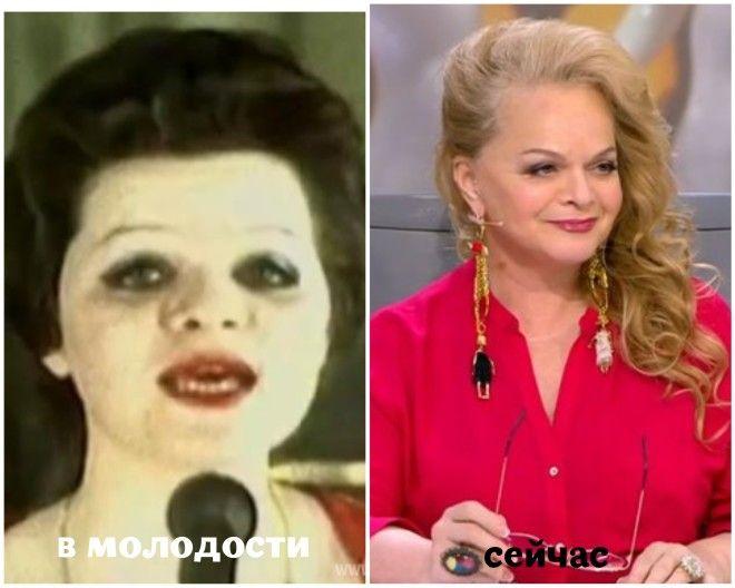SВот как постарели российские звезды с начала своей карьеры